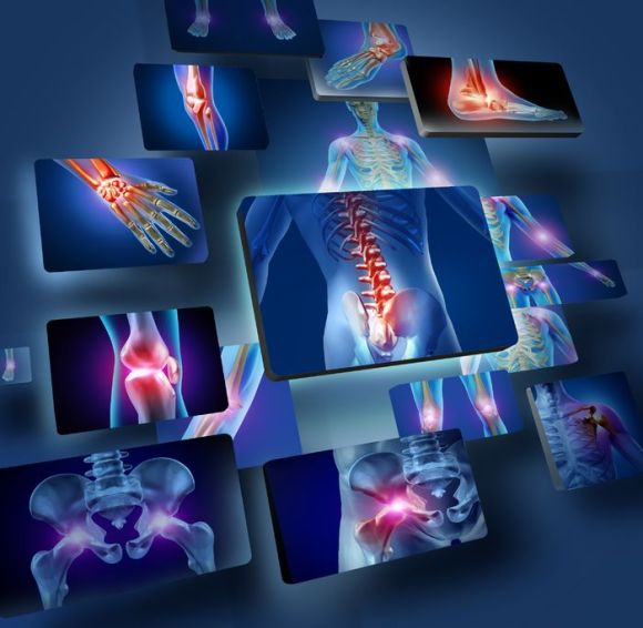 17688042 - human joints concept with the skeleton anatomy of the body with a group of panels of sore joints glowing as a pain and injury or arthritis illness symbol for health care and medical symptoms